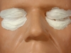 frw-068-aging-eye-lids-and-bags