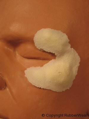 frw-028-left-swollen-cheek