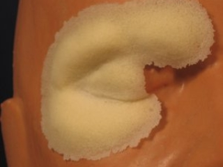 frw-029-right-swollen-cheek