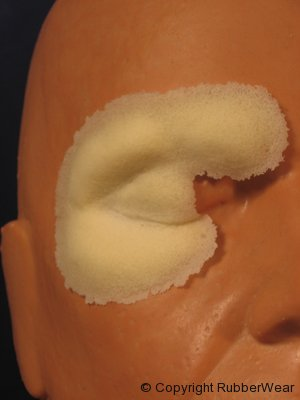frw-029-right-swollen-cheek